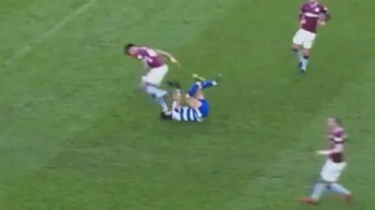 Przerażające obrażenia piłkarza po przypadkowym nadepnięciu na twarz (ZDJĘCIE)