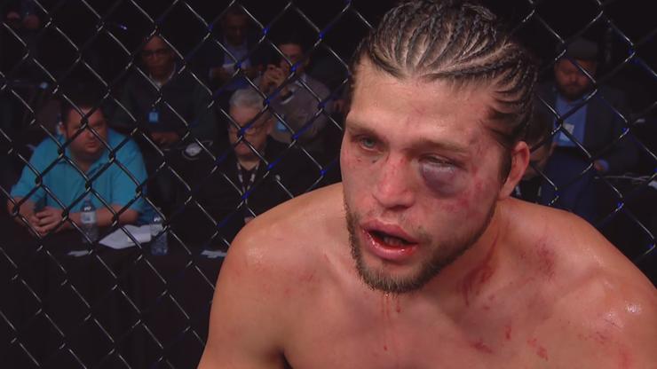 """UFC 231: Ortega wydał oświadczenie po krwawej wojnie. """"Byłem gotowy umrzeć"""""""